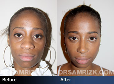 Case 1 - African American (Black) Rhinoplasty - before and after photos - front view