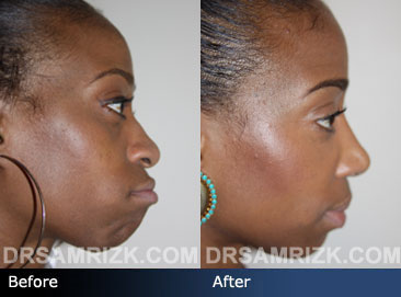 Case 1 - African American (Black) Rhinoplasty - before and after photos - side view