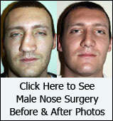 Male Nose Surgery Before and After Photos