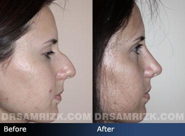Hispanic Rhinoplasty, Spanish Nose Job Surgery NYC