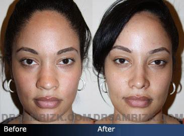 Hispanic Rhinoplasty Spanish Nose Job Surgery Nyc