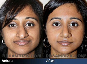 Case 3  - Indian Rhinoplasty  - Before and After - front view