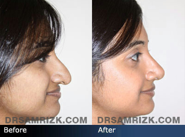 Case 3  - Indian Rhinoplasty  - Before and After - side view