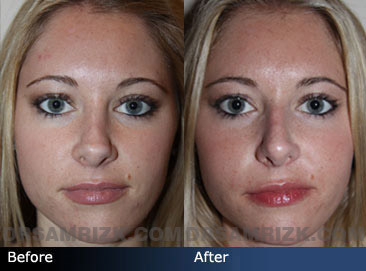 Revision Rhinoplasty, Secondary Nose Surgery