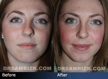 Crooked Nose | Twisted Nose Correction in NYC