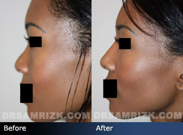 Case 7 - African American (Black) Rhinoplasty - before and after photos - side view