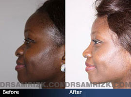 Case 2 - African American (Black) Rhinoplasty - before and after photos - side view