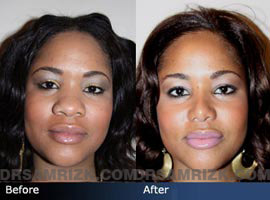 Case 4 - African American (Black) Rhinoplasty - before and after photos - front view