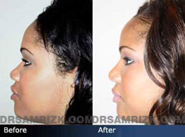Case 4 - African American (Black) Rhinoplasty - before and after photos - side view