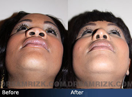 Case 4 - African American (Black) Rhinoplasty - before and after photos