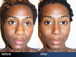 Case 5 - African American (Black) Rhinoplasty - before and after photos - front view