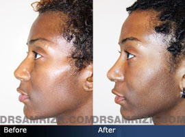 Case 5 - African American (Black) Rhinoplasty - before and after photos - side view