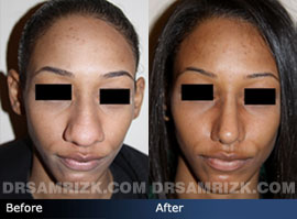 Case 2 - Before and after ETHNIC RHINOPLASTY - front view