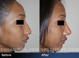 Case 2 - Before and after ETHNIC RHINOPLASTY - side view