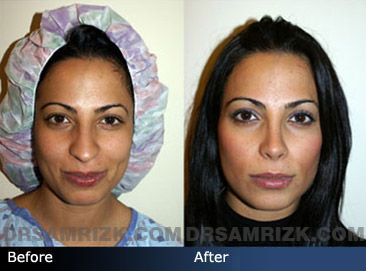 Case 6 - Before and after ETHNIC RHINOPLASTY - front view