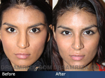 Case 7 - Before and after ETHNIC RHINOPLASTY - front view