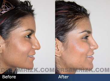 Case 7 - Before and after ETHNIC RHINOPLASTY - side view
