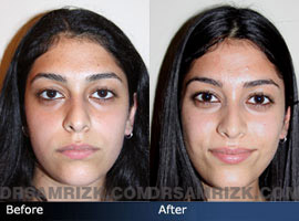 Case 4 - Before and after ETHNIC RHINOPLASTY - front view