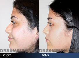 Case 4 - Before and after ETHNIC RHINOPLASTY - side view