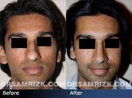 Case 5 - Before and after ETHNIC RHINOPLASTY - front view