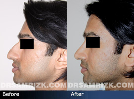 Case 5 - Before and after ETHNIC RHINOPLASTY - side view