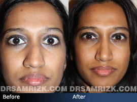 Case 1 - Before and after ETHNIC RHINOPLASTY - front view