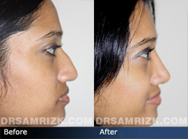 Case 1 - Before and after ETHNIC RHINOPLASTY - side view