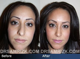 Case 10 - Before and after ETHNIC RHINOPLASTY - front view