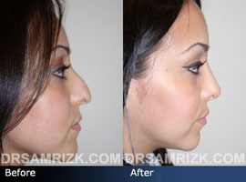 Case 10 - Before and after ETHNIC RHINOPLASTY - side view