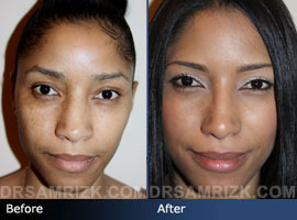 Case 9 - Before and after ETHNIC RHINOPLASTY - front view