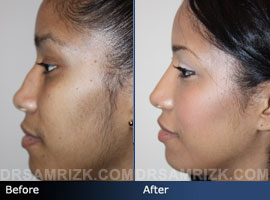 Case 9 - Before and after ETHNIC RHINOPLASTY - side view