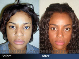 Case 3 - African American (Black) Rhinoplasty - before and after photos - front view