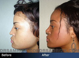 Case 3 - African American (Black) Rhinoplasty - before and after photos - side view