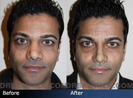 Case 4  - Indian Rhinoplasty  - Before and After - front view