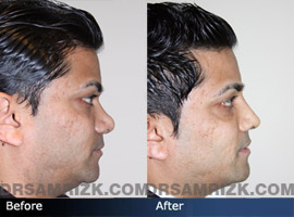 Case 4  - Indian Rhinoplasty  - Before and After - side view