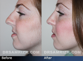 Crooked Nose - Case 1 - Before and After Photos - side view