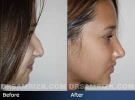 Teenage Rhinoplasty - Case 1 - Before and after photos side view