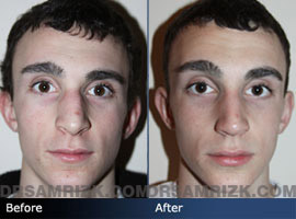 Teenage Rhinoplasty - Case 3 - Before and after photos front view
