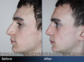 Teenage Rhinoplasty - Case 3 - Before and after photos side view
