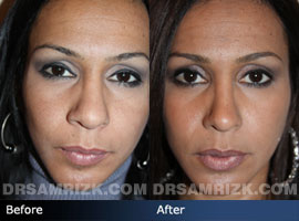 Case 3 - Before and after ETHNIC RHINOPLASTY - front view