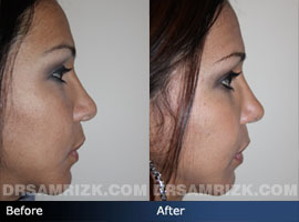 Case 3 - Before and after ETHNIC RHINOPLASTY - side view