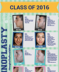 Dr. Sam Rizk Pioneers Game-Changing, Rapid Recovery Rhinoplasty Techniques For Teens