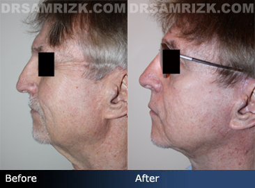 Rhinoplasty In Older Patients - Before and After Photos