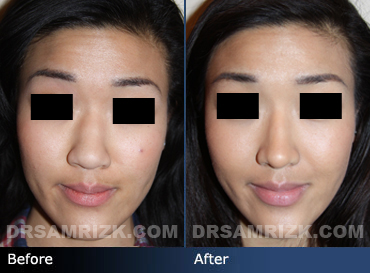Case 8 - Before and after ETHNIC RHINOPLASTY - front view