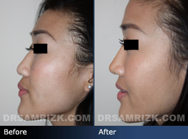 Case 8 - Before and after ETHNIC RHINOPLASTY - side view