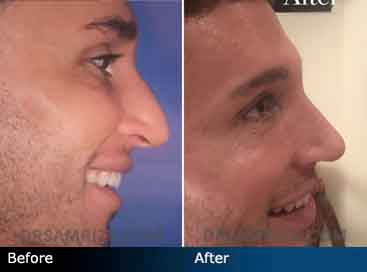 Male celebrity hair stylist who wanted to remove his bump and lift the dropping tip- Patient shown 2 weeks after endonasal rhinoplasty.
