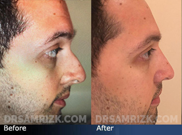 Patient wanted nose bump removed and septoplasty to breathe better. Patient has a history of nasal fracture injury. Patient is shown 9 months after endonasal rhinoplasty/ septoplasty and he is very happy with shape and breathing. Results are very natural and still masculine.