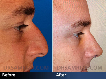 Rhinoplasty- patient shown 6 days after open rhinoplasty for bump, droopy tip and tip refinement. Patient is still swollen and tip will drop over next few months.