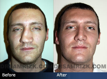 Nose Job Photo Gallery Men