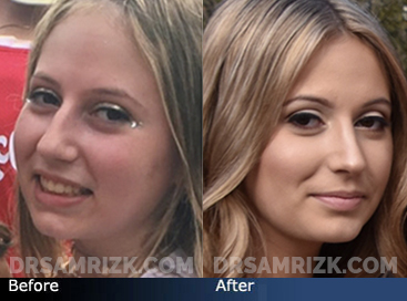 Teenage Rhinoplasty - Case 4 - Before and after photos front view